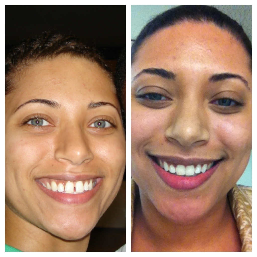 My success with Invisalign | Somethings on my mind